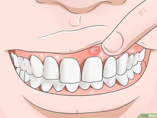 v4-728px-Reduce-Gum-Swelling-Step-1-Version-3.jpg